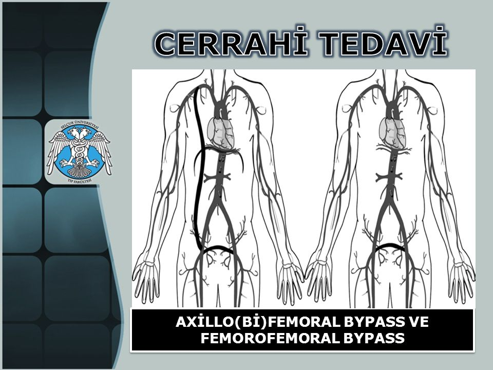 AXİLLO(Bİ)FEMORAL BYPASS VE FEMOROFEMORAL BYPASS