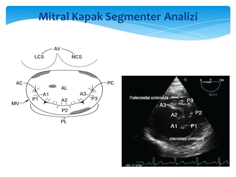 Mitral Kapak Segmenter Analizi