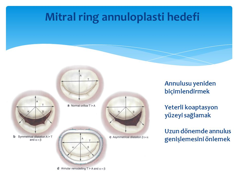 Mitral ring annuloplasti hedefi