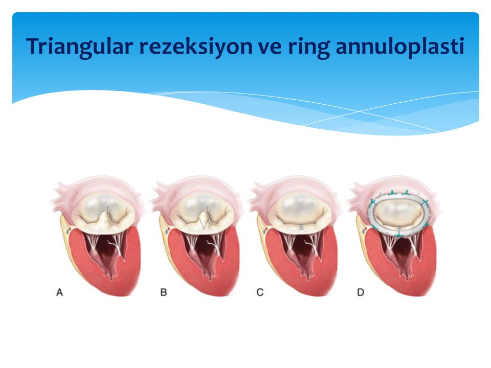 Triangular rezeksiyon ve ring annuloplasti