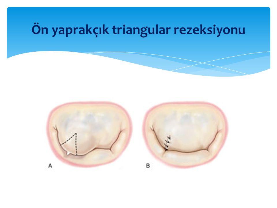 Ön yaprakçık triangular rezeksiyonu
