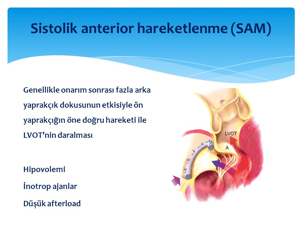 Sistolik anterior hareketlenme (SAM)