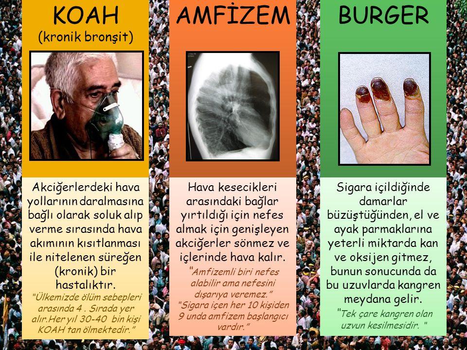 KOAH AMFİZEM BURGER (kronik bronşit)