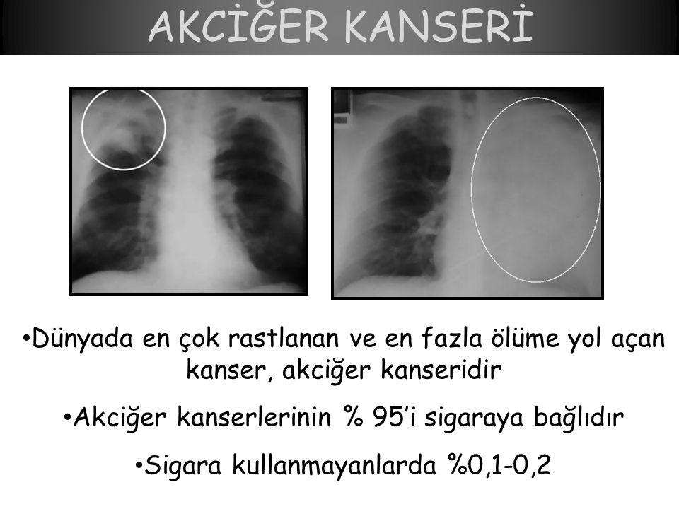 AKCİĞER KANSERİ Dünyada en çok rastlanan ve en fazla ölüme yol açan kanser, akciğer kanseridir. Akciğer kanserlerinin % 95'i sigaraya bağlıdır.