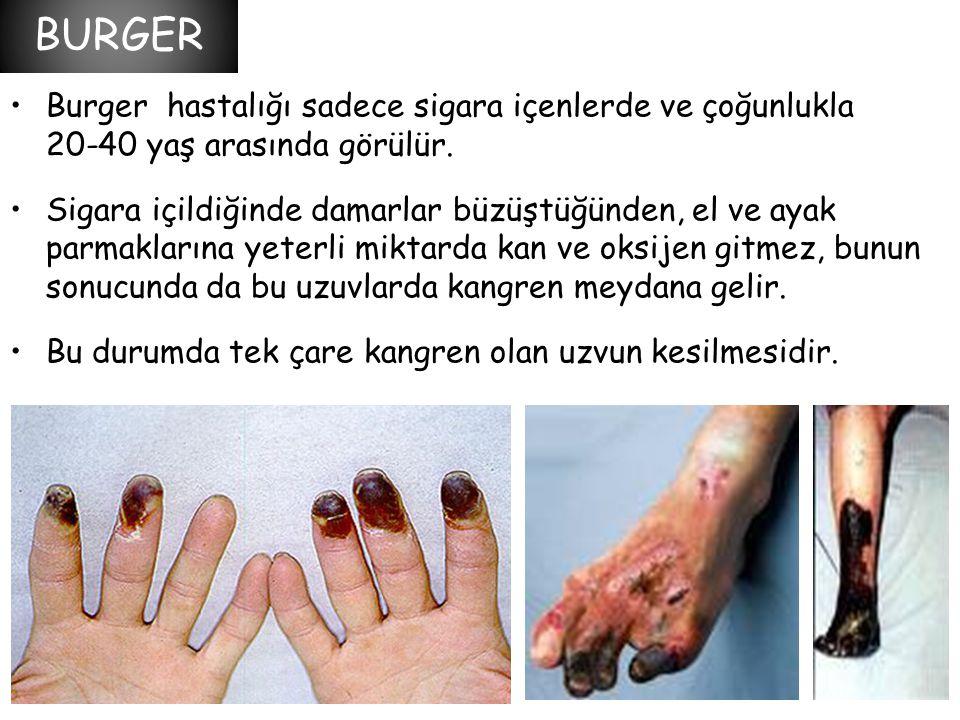 BURGER Burger hastalığı sadece sigara içenlerde ve çoğunlukla 20-40 yaş arasında görülür.