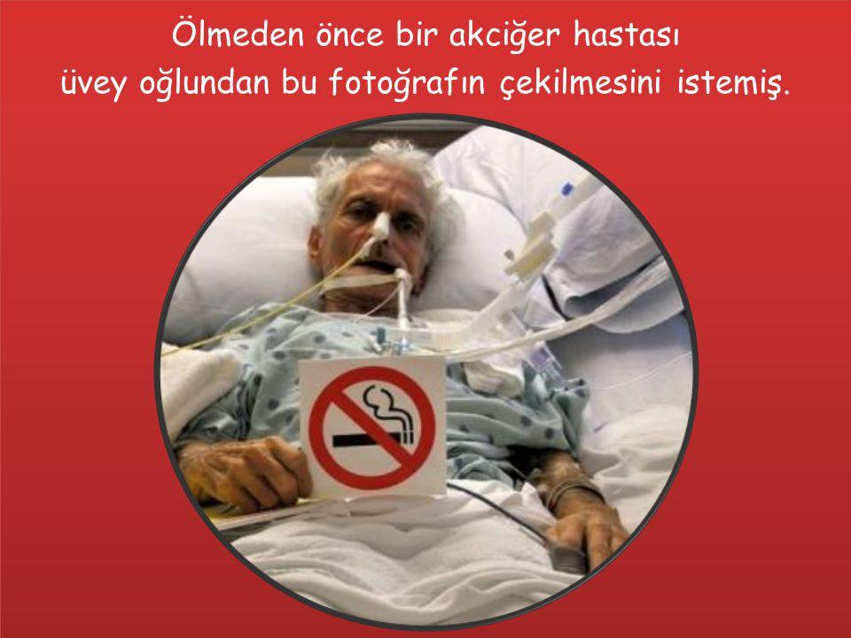 Ölmeden önce bir akciğer hastası