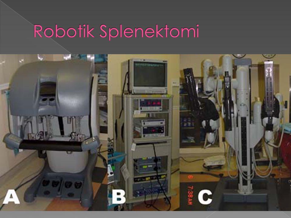 Robotik Splenektomi
