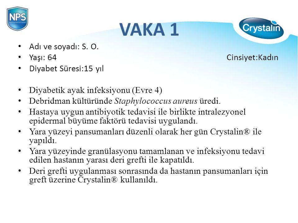 VAKA 1 Adı ve soyadı: S. O. Yaşı: 64 Cinsiyet:Kadın