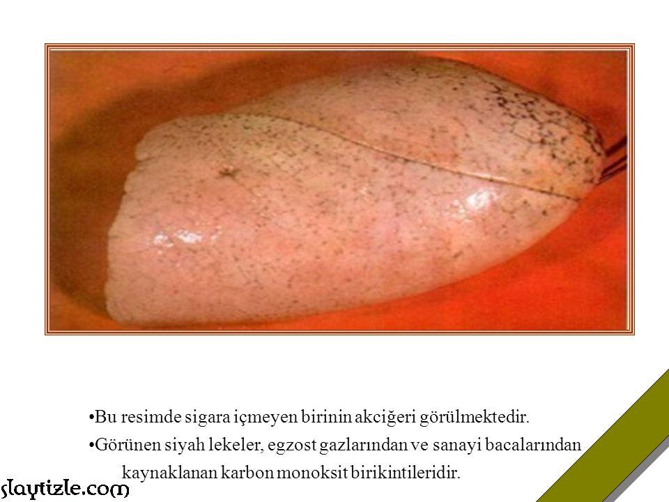 Bu resimde sigara içmeyen birinin akciğeri görülmektedir.