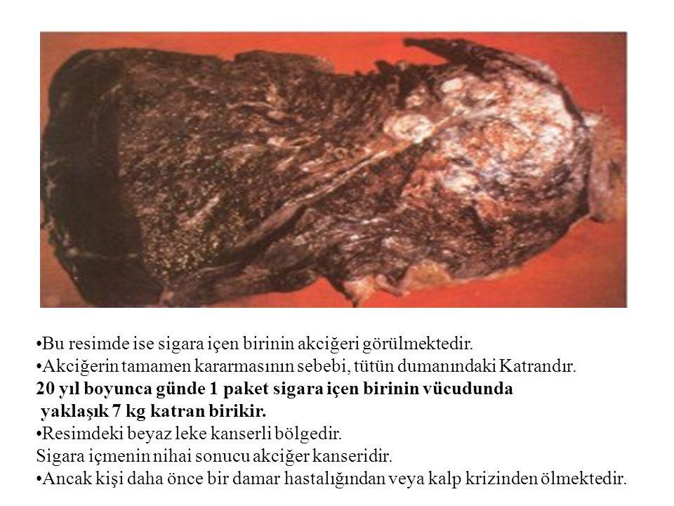 Bu resimde ise sigara içen birinin akciğeri görülmektedir.