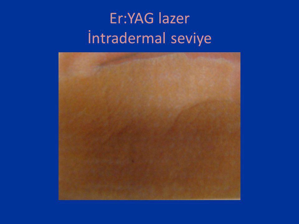 Er:YAG lazer İntradermal seviye