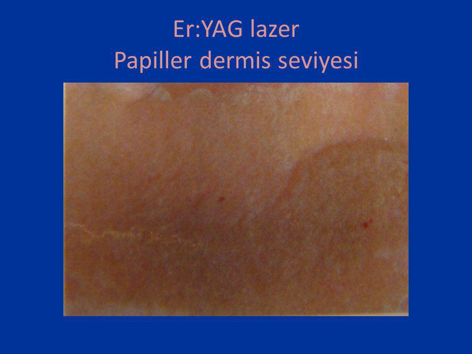 Er:YAG lazer Papiller dermis seviyesi
