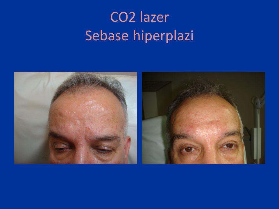CO2 lazer Sebase hiperplazi