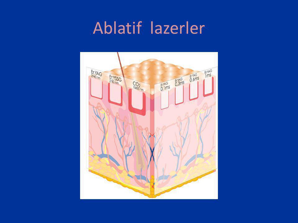 Ablatif lazerler