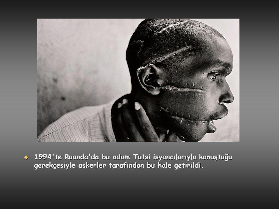 1994 te Ruanda da bu adam Tutsi isyancılarıyla konuştuğu gerekçesiyle askerler tarafından bu hale getirildi.