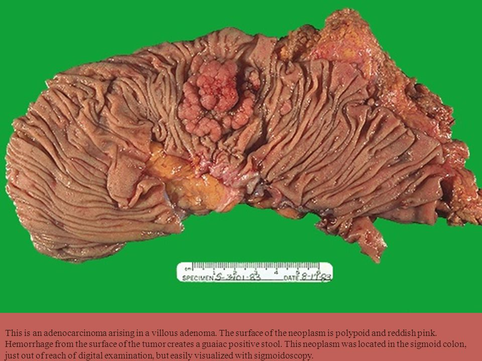 This is an adenocarcinoma arising in a villous adenoma