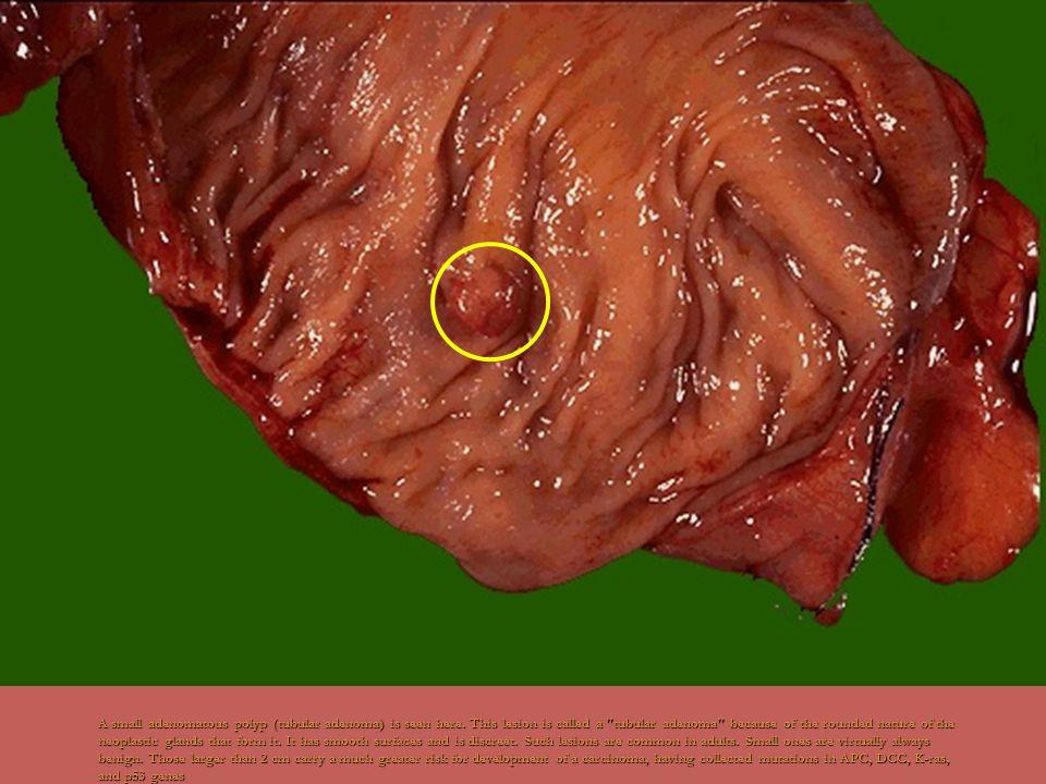 A small adenomatous polyp (tubular adenoma) is seen here