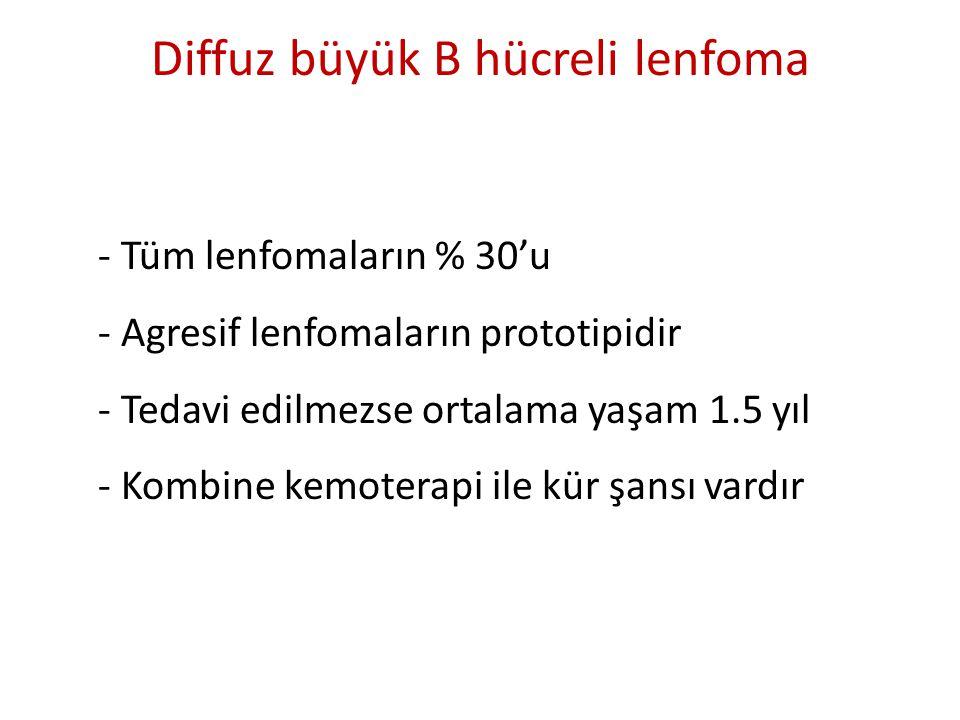 Diffuz büyük B hücreli lenfoma