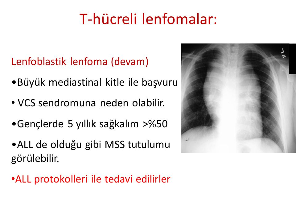 T-hücreli lenfomalar: