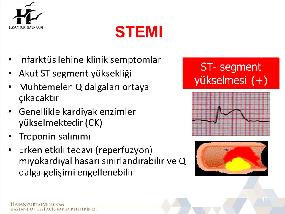 ST- segment yükselmesi (+)