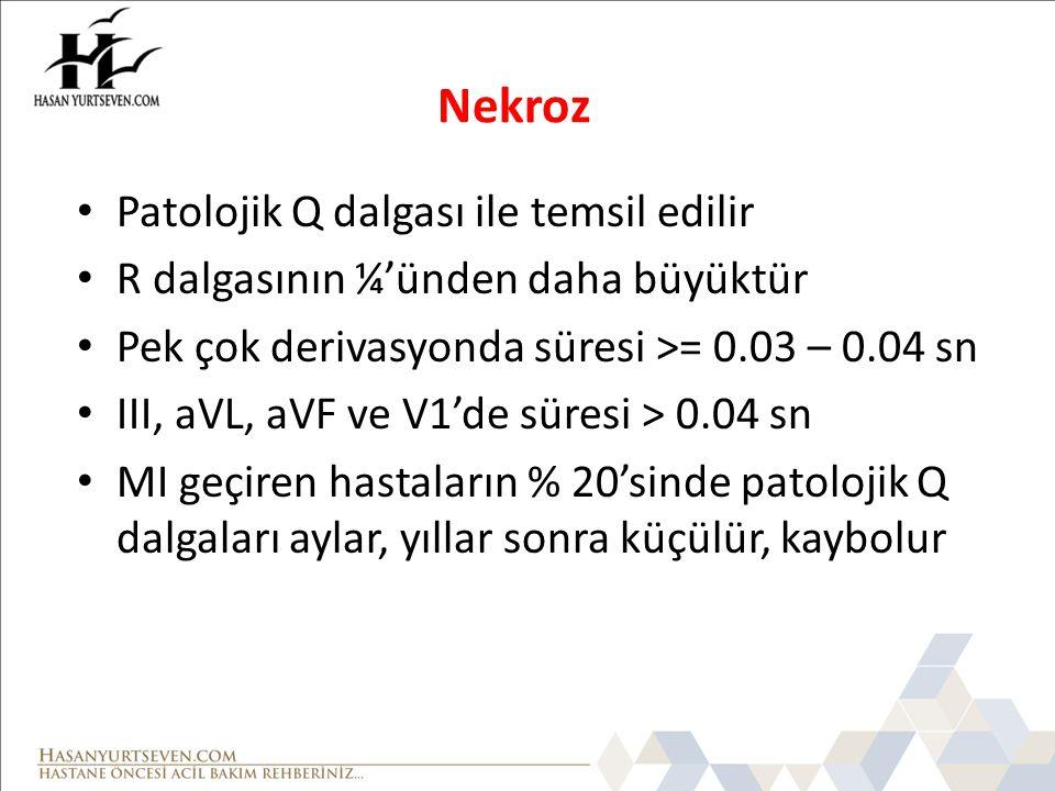 Nekroz Patolojik Q dalgası ile temsil edilir