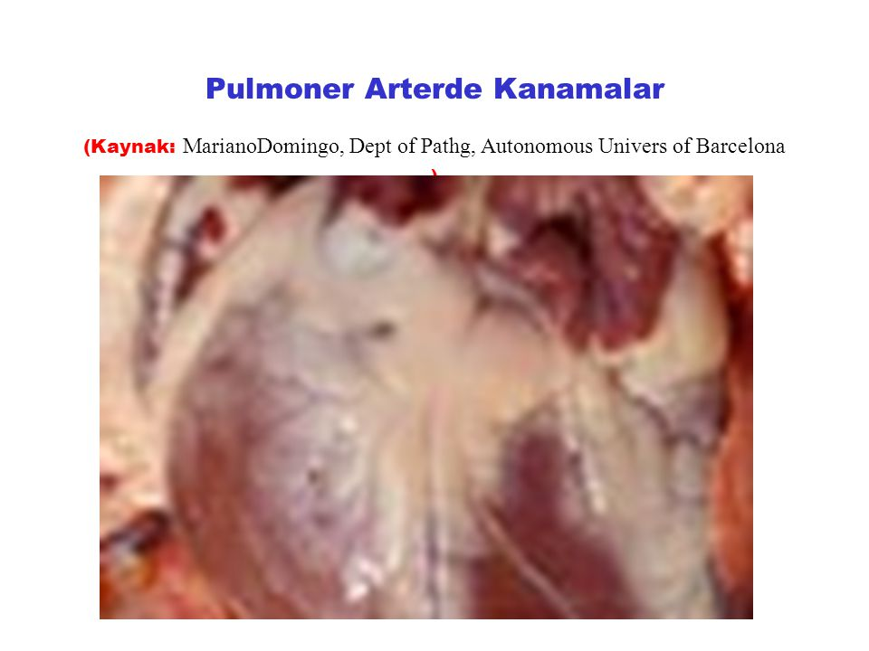 Pulmoner Arterde Kanamalar (Kaynak: MarianoDomingo, Dept of Pathg, Autonomous Univers of Barcelona )
