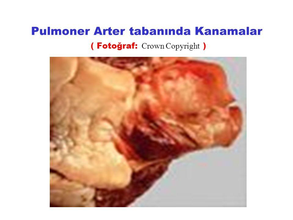 Pulmoner Arter tabanında Kanamalar ( Fotoğraf: Crown Copyright )