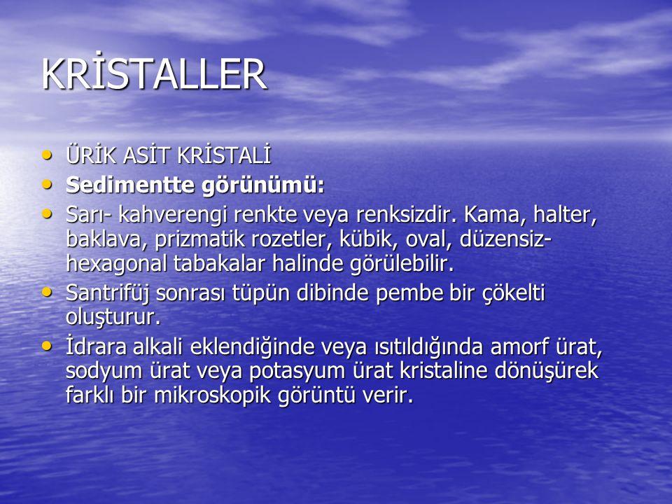 KRİSTALLER ÜRİK ASİT KRİSTALİ Sedimentte görünümü: