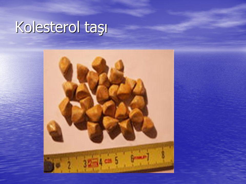 Kolesterol taşı