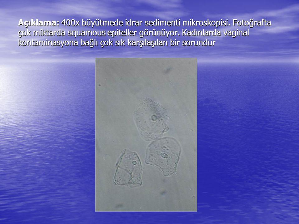Açıklama: 400x büyütmede idrar sedimenti mikroskopisi