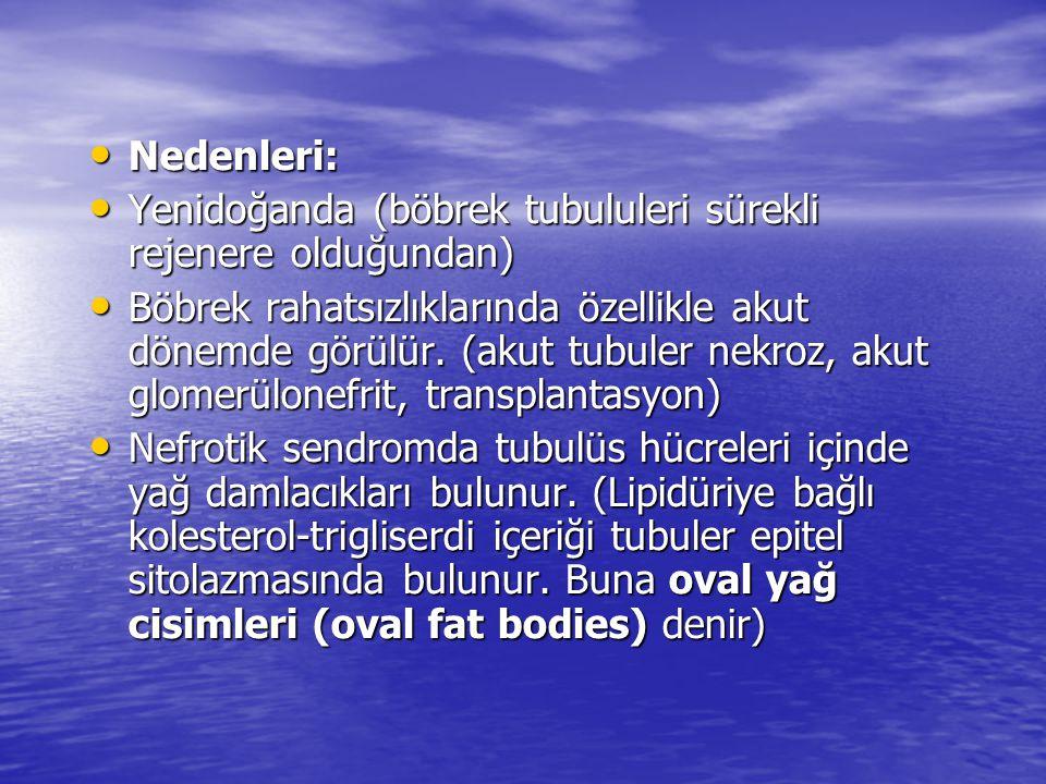 Nedenleri: Yenidoğanda (böbrek tubululeri sürekli rejenere olduğundan)