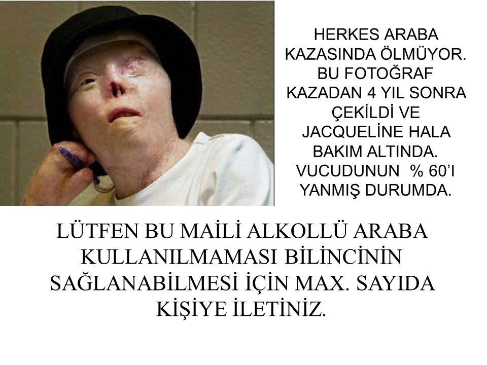 HERKES ARABA KAZASINDA ÖLMÜYOR.