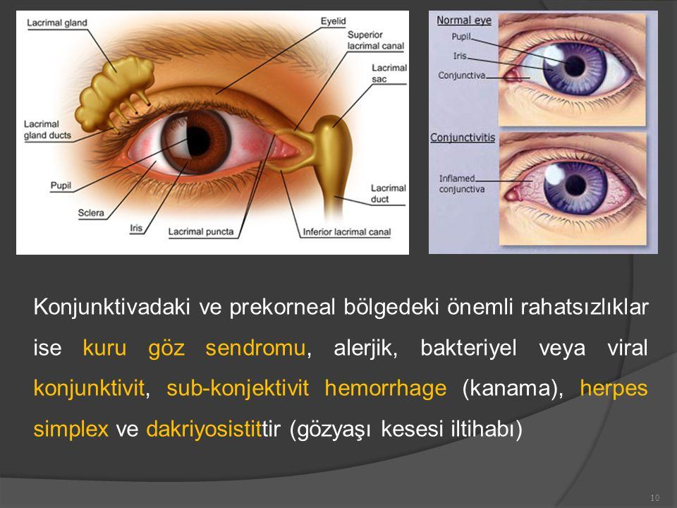 Konjunktivadaki ve prekorneal bölgedeki önemli rahatsızlıklar ise kuru göz sendromu, alerjik, bakteriyel veya viral konjunktivit, sub-konjektivit hemorrhage (kanama), herpes simplex ve dakriyosistittir (gözyaşı kesesi iltihabı)