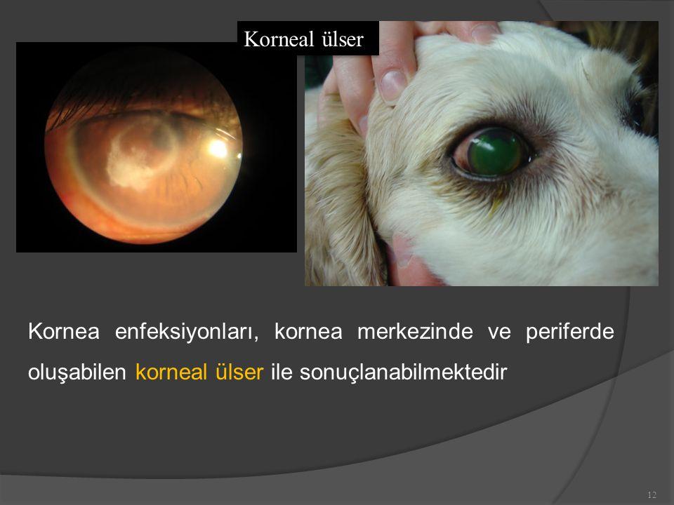 Korneal ülser Kornea enfeksiyonları, kornea merkezinde ve periferde oluşabilen korneal ülser ile sonuçlanabilmektedir.
