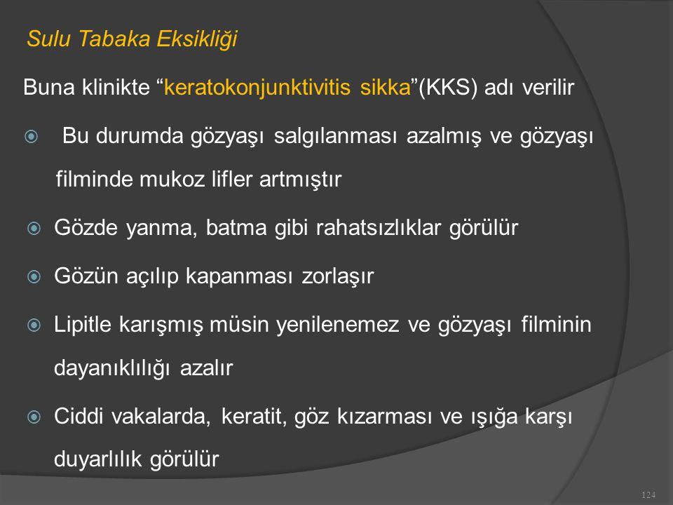 Sulu Tabaka Eksikliği Buna klinikte keratokonjunktivitis sikka (KKS) adı verilir.