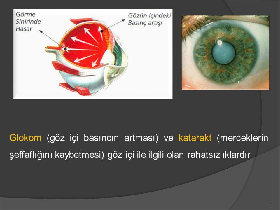 Glokom (göz içi basıncın artması) ve katarakt (merceklerin şeffaflığını kaybetmesi) göz içi ile ilgili olan rahatsızlıklardır