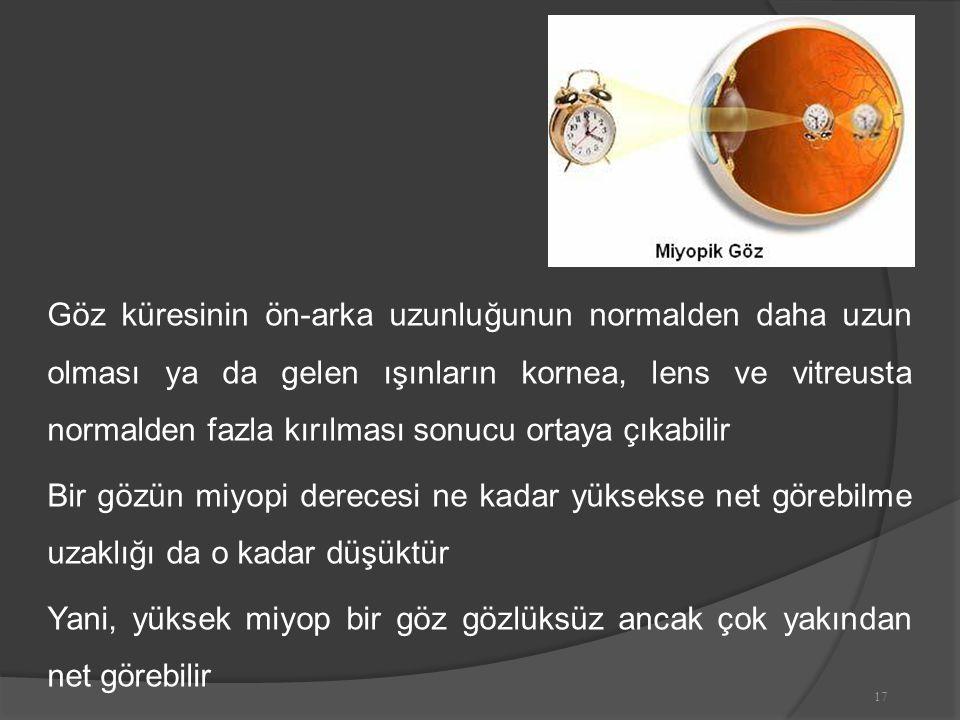 Göz küresinin ön-arka uzunluğunun normalden daha uzun olması ya da gelen ışınların kornea, lens ve vitreusta normalden fazla kırılması sonucu ortaya çıkabilir