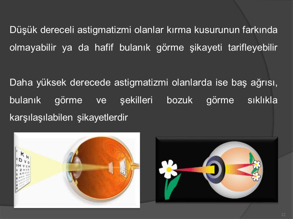Düşük dereceli astigmatizmi olanlar kırma kusurunun farkında olmayabilir ya da hafif bulanık görme şikayeti tarifleyebilir Daha yüksek derecede astigmatizmi olanlarda ise baş ağrısı, bulanık görme ve şekilleri bozuk görme sıklıkla karşılaşılabilen şikayetlerdir