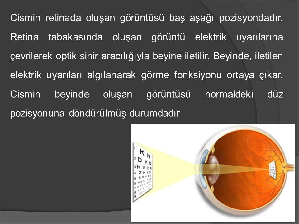 Cismin retinada oluşan görüntüsü baş aşağı pozisyondadır