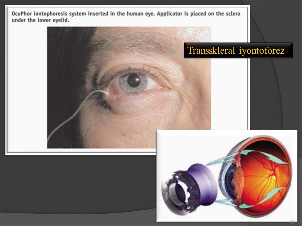 Transskleral iyontoforez
