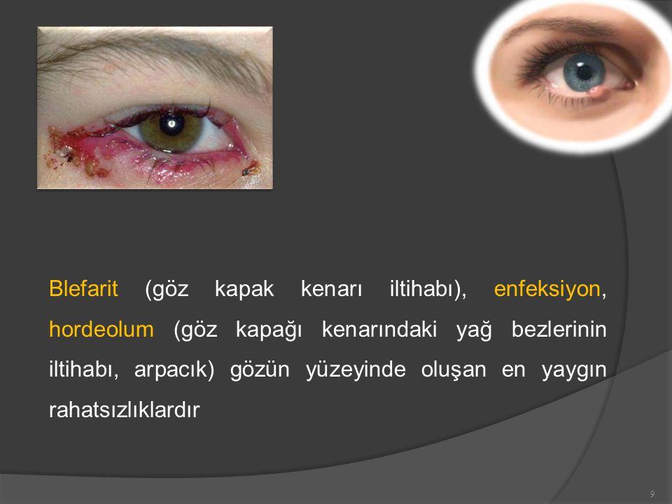 Blefarit (göz kapak kenarı iltihabı), enfeksiyon, hordeolum (göz kapağı kenarındaki yağ bezlerinin iltihabı, arpacık) gözün yüzeyinde oluşan en yaygın rahatsızlıklardır