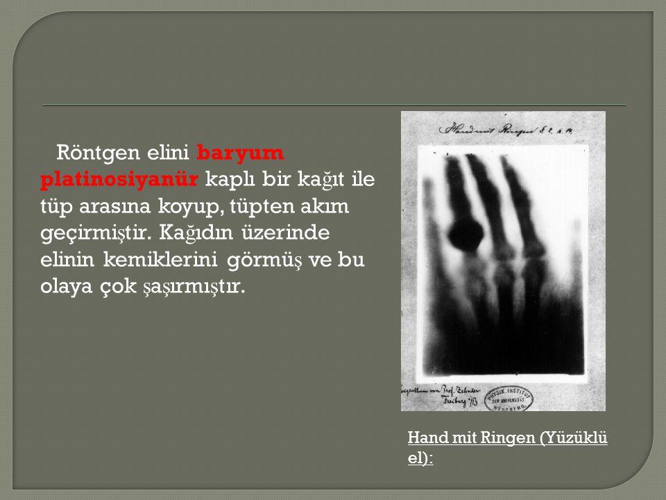 Röntgen elini baryum platinosiyanür kaplı bir kağıt ile tüp arasına koyup, tüpten akım geçirmiştir. Kağıdın üzerinde elinin kemiklerini görmüş ve bu olaya çok şaşırmıştır.