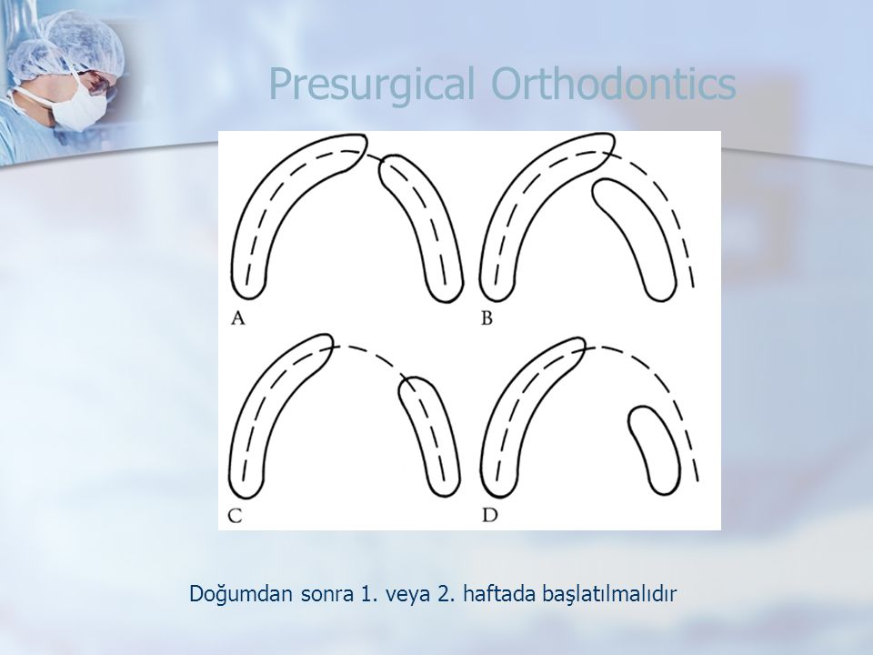 Presurgical Orthodontics