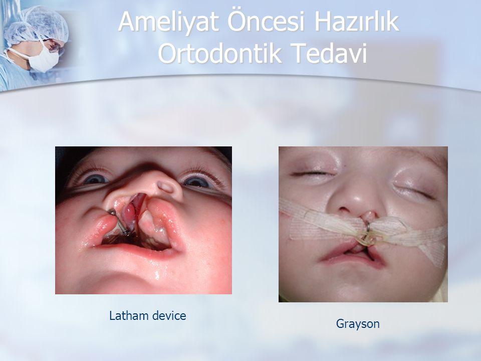 Ameliyat Öncesi Hazırlık Ortodontik Tedavi