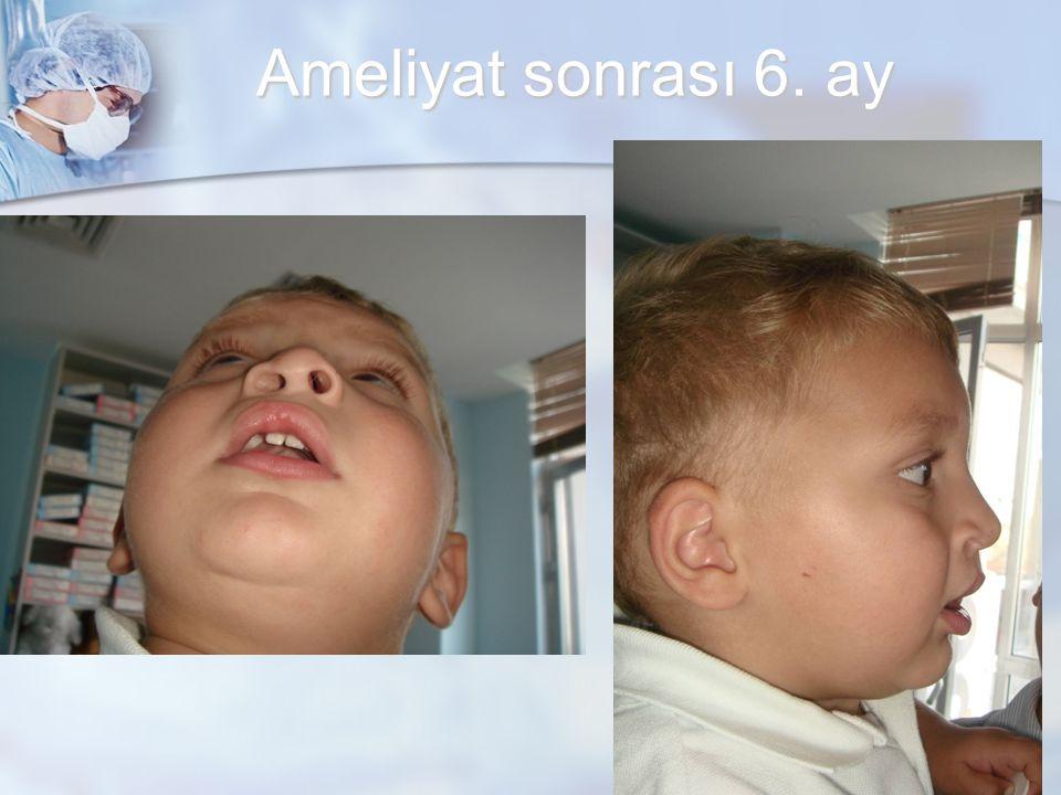 Ameliyat sonrası 6. ay