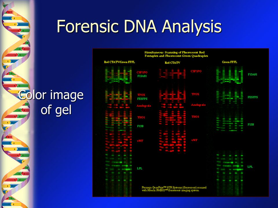 Forensic DNA Analysis Color image of gel