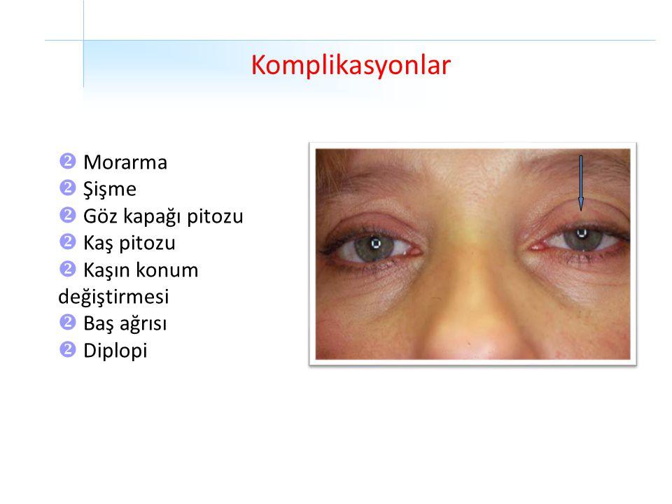 Komplikasyonlar Morarma Şişme Göz kapağı pitozu Kaş pitozu