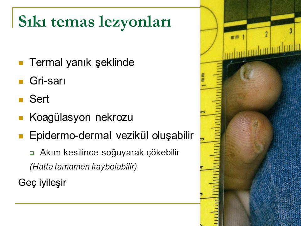 Sıkı temas lezyonları Termal yanık şeklinde Gri-sarı Sert