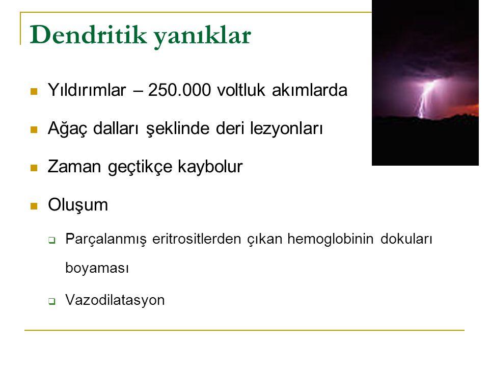 Dendritik yanıklar Yıldırımlar – 250.000 voltluk akımlarda
