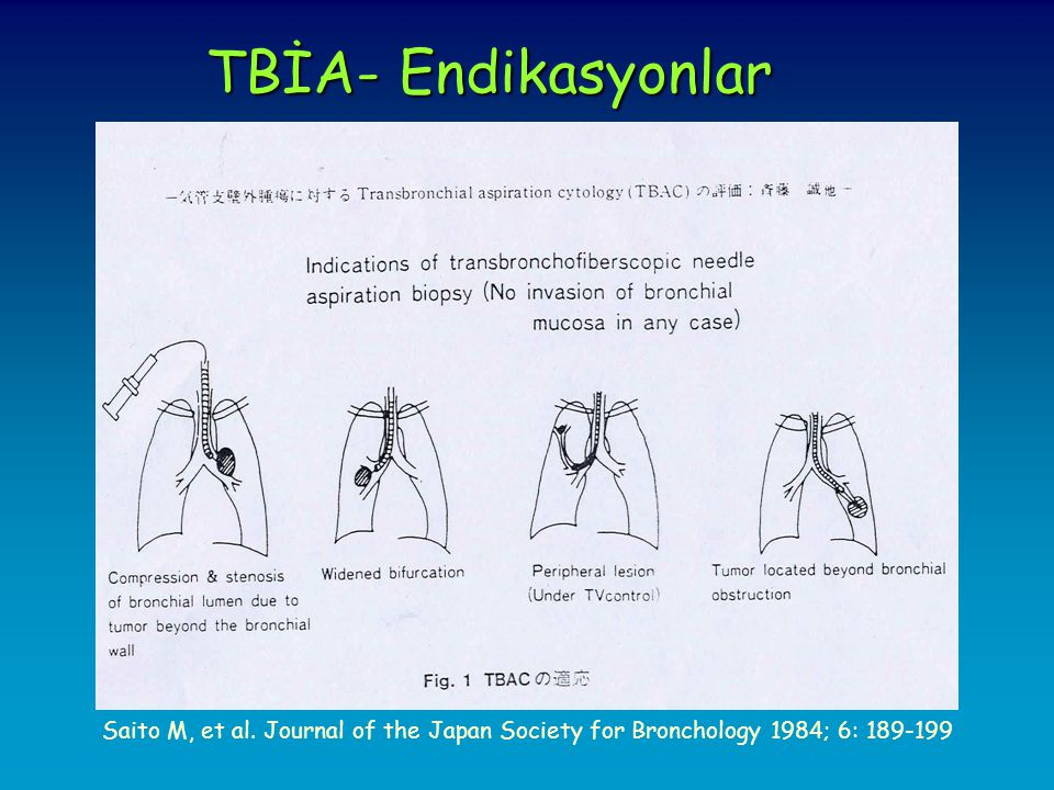 TBİA- Endikasyonlar Saito M, et al. Journal of the Japan Society for Bronchology 1984; 6:
